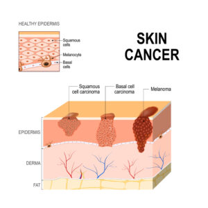 skin cancer from the sun san diego